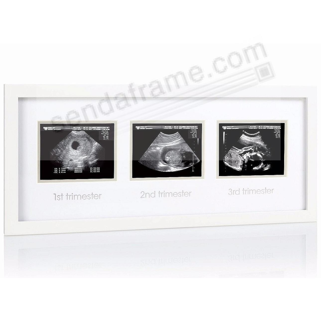 Babyprints® TRIPLE SONOGRAM White frame - Picture Frames, Photo ...