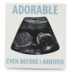 ADORABLE.. Ultrasound frame by Our Name is Mud�